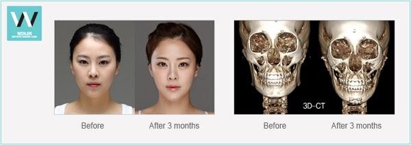 Square Jaw Reduction | plastic surgery in korea Wonjinbeauty.com