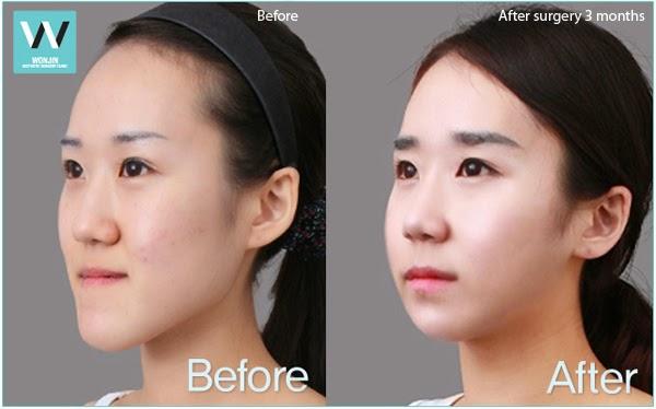 Astounding Wonjin Personalized Two Jaw Surgery Plastic Surgery In Korea Short Hairstyles For Black Women Fulllsitofus