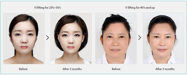 Wonjin Beauty Medical – Page 2 – plastic surgery in korea ...