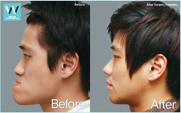 Two Jaw Surgery – Page 2 – plastic surgery in korea Wonjinbeauty.com
