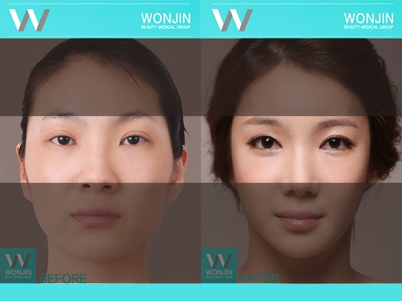 Asian women have won