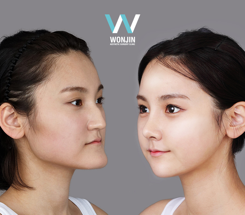 two jaw story in korea wonjin beauty medical group – plastic ...