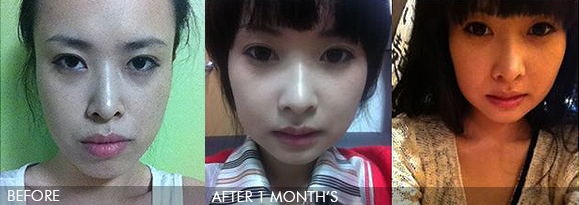 face contoure,two jaw in korea – my plastic surgery story