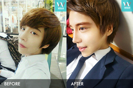 Men's plastic surgery - nose job,eyelid surgery story in korea before and after