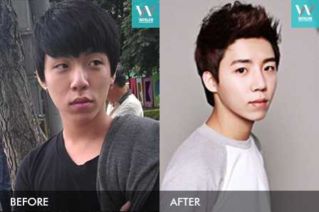 Men's plastic surgery - twojaw, face contour story in korea