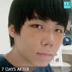 Men's plastic surgery - eyelid surgery, anti-aging, nose job story in korea (before and after)