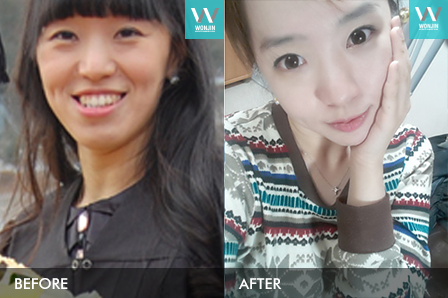 face contoure, eyelid, nose job in korea – my plastic surgery story