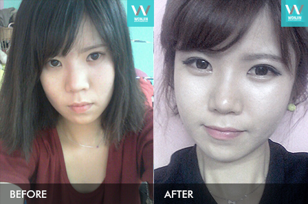 eyelid surger before and after [ korea wonjin beauty medical group]