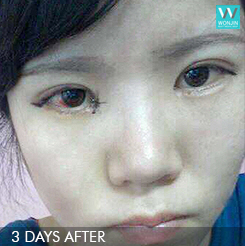 3days after eyelid surger