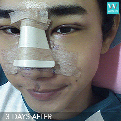 eyelid surgery nose job plastic surgery for men (best plastic surgery in korea wonjin beauty medical group)2