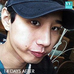 eyelid surgery nose job plastic surgery for men (best plastic surgery in korea wonjin beauty medical group)4