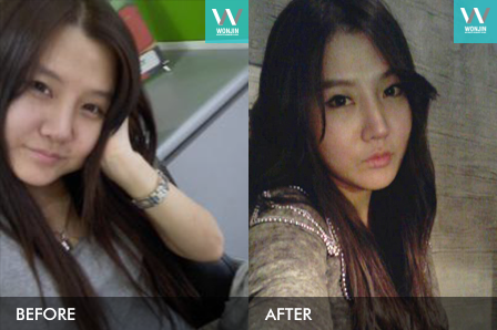 nose surgery in korea – my plastic surgery story before and after