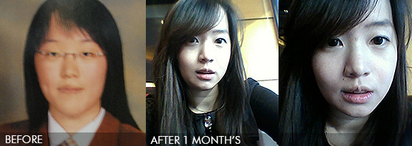 two jaw, face contoure in korea – my plastic surgery story(Before and After)